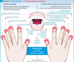 ¿Te muerdes las uñas? Conoce todo sobre la onicofagia